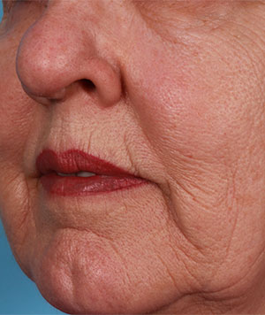 Fractional CO2 Laser Resurfacing Before and After Results