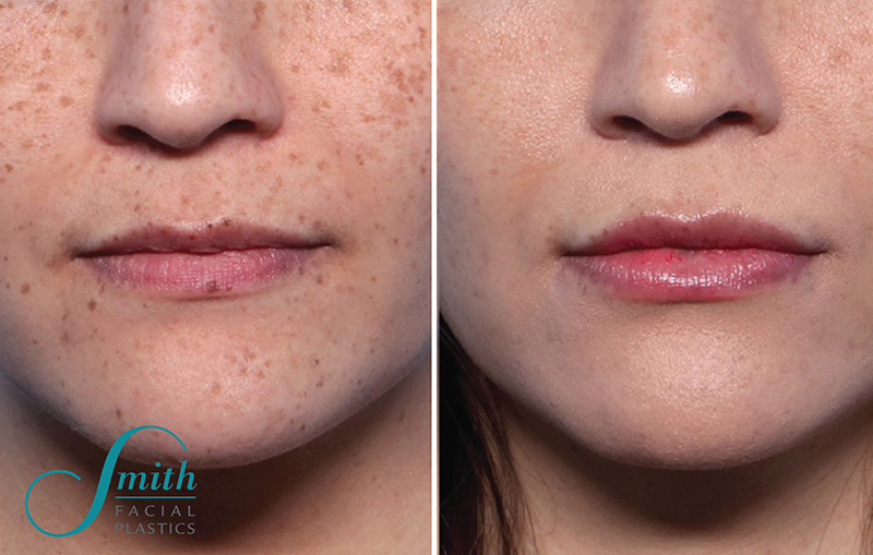 Lip Augmentation Before and After Results